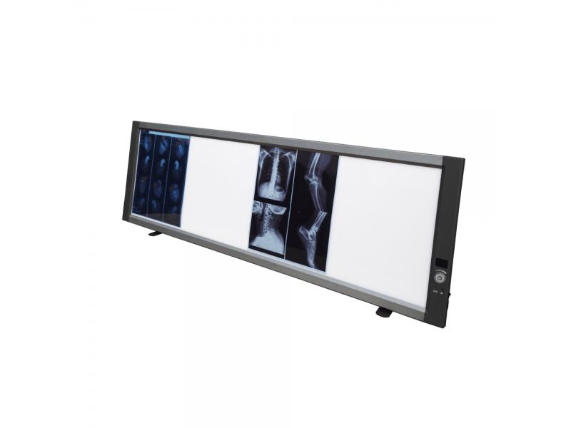 LED Viewing Box, X Ray Viewer Negatoscope Medical Film Viewer